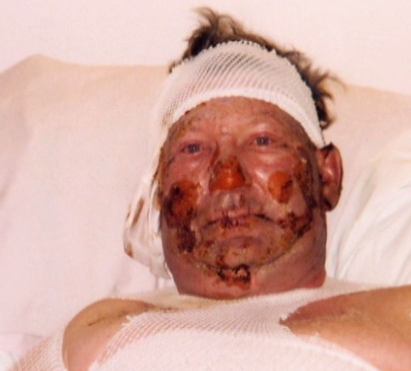 2006-05-09-close-up-bruce-jack-in-hospital-after-his-methane-ethane-contaminated-water-well-exploded