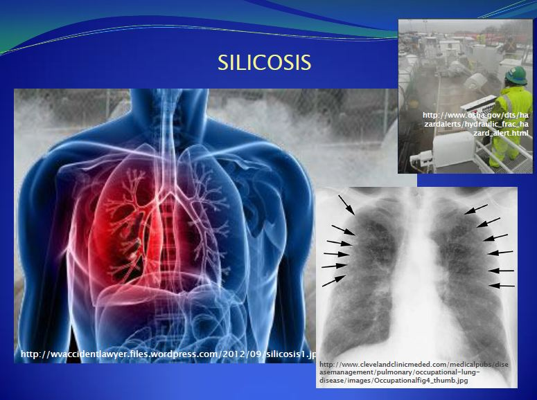2013 09 Dr. Larysa Dyrszka presentation in Ukraine Environmental Stressors to workers Silicosis